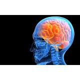 Нарушения головного мозга