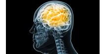 Исследователи доказали: ожирение разрушает головной мозг